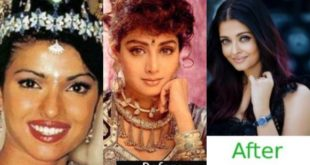 Were they like this in the past?  Seven Bollywood superheroes before and after cosmetic surgery
