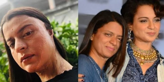 Don't even think about beauty when your body parts are melting one by one - Rangoli Chandel on Acid Attack Surviving Days